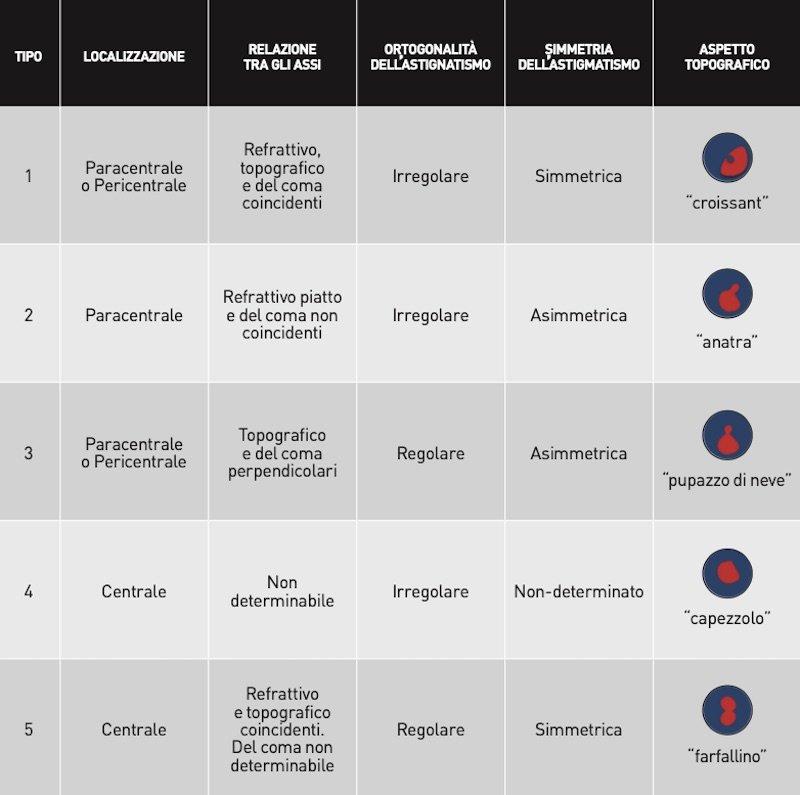 Che cosa è il cheratocono Classificazione Fernandez-Vega Alfonso