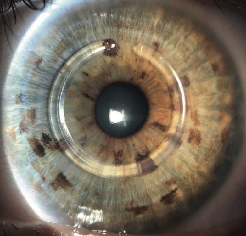 How keratoconus is treated 1