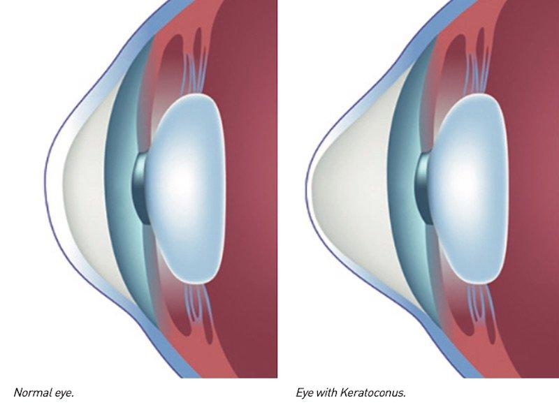 eye with keratoconus