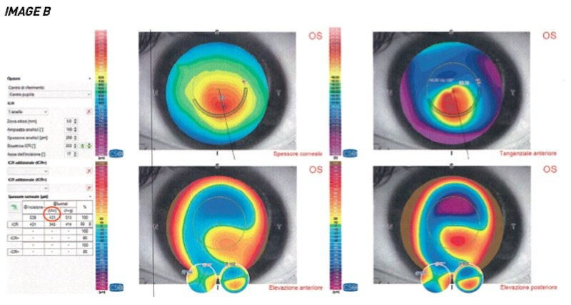 keratoconus patient waiting