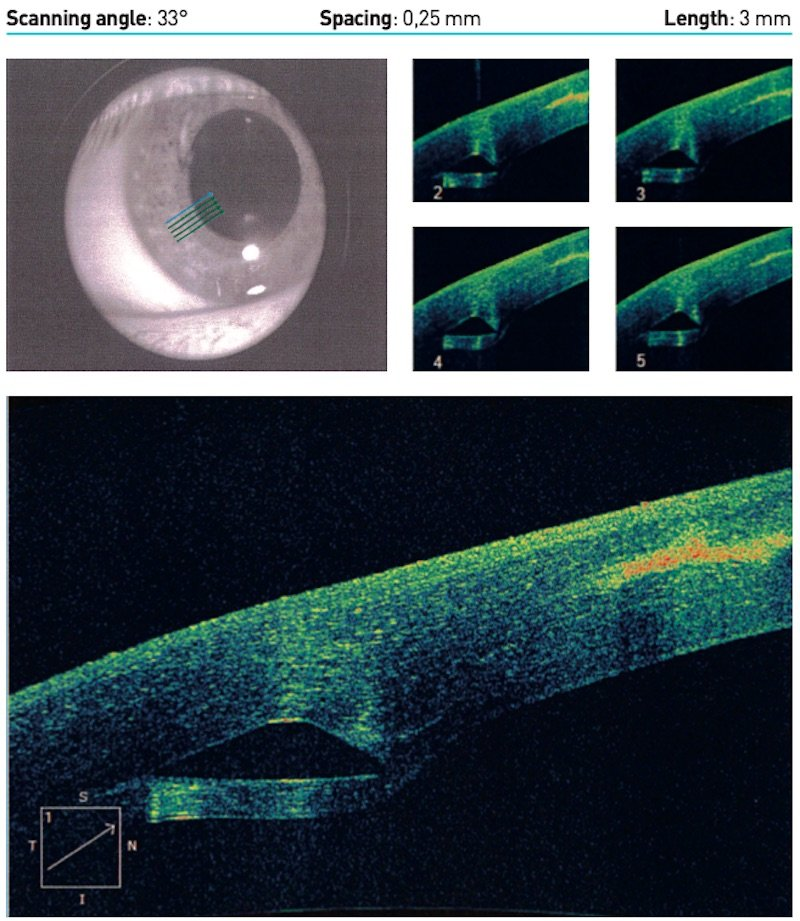 scanning angle 33 degrees keratoconus