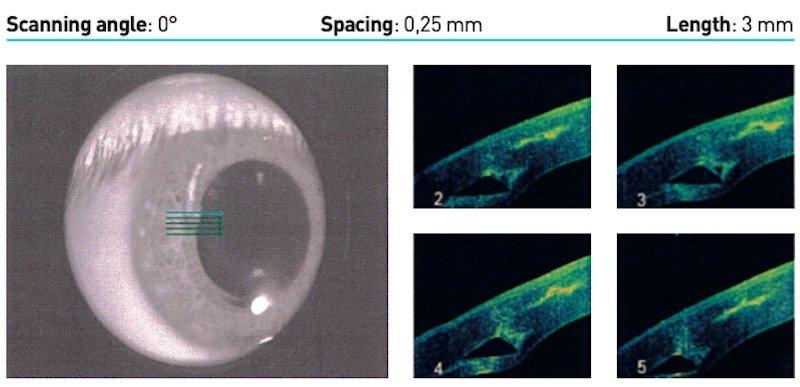 scanning angle keratoconus