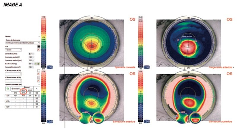 waiting is not the right strategy keratoconus